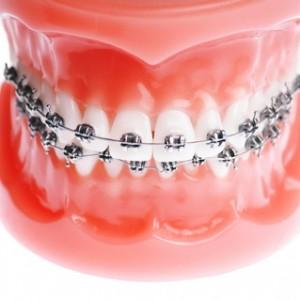Aparat dentar in Iasi