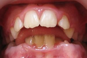 interpunerea limbii intre dinti