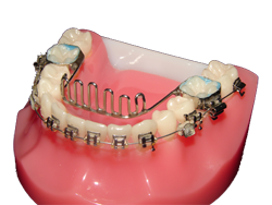scut lingual mandibular